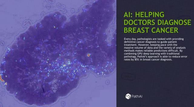 从基因诊断到医疗影像分析,11个案例帮你读懂深度学习的应用