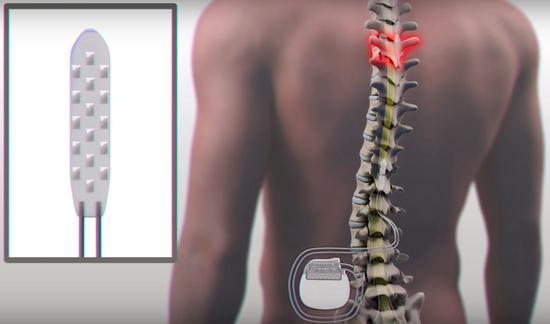 植入电极阵列及脉冲发生器示意图(来源:梅奥诊所)