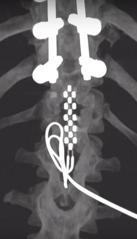 在受伤处下方植入电极阵列(来源:梅奥诊所)
