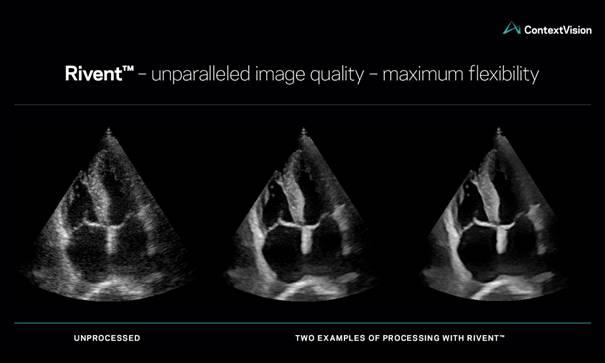 康泰瑞影全新2D超聲圖像增強軟件Rivent讓超聲圖像更清晰