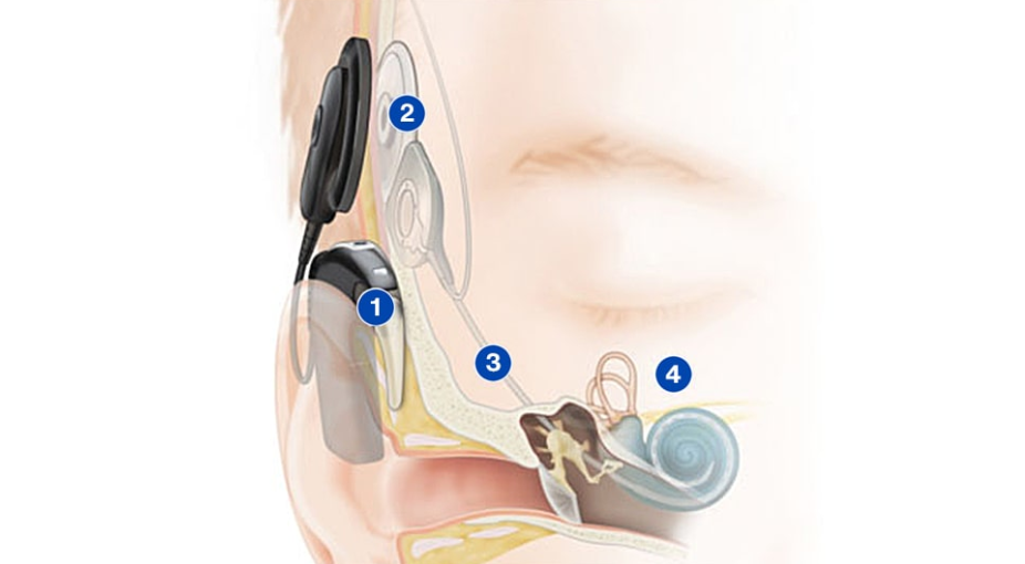 ICsense为Cochlear开发人工耳蜗ASIC